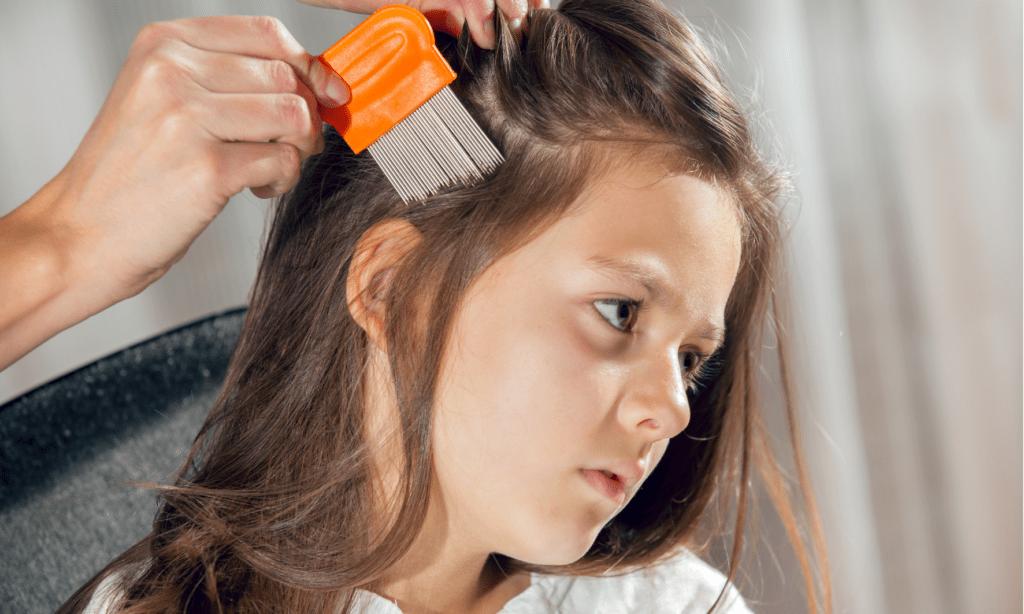 head lice inverness